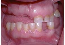 48%попуст за надокнадување на изгубени заби со изработување на естетски металокерамички мостови