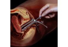72% попуст на пакет гинеколошки преглед (ЕХО, ПАП тест, вагинален преглед и Пх на вагина) во гинеколошко акушерска ординација Скопје Гинеколоџи (во состав на Скопје Поликлиник) во вредност од 3 600 ден. по цена од 980 ден.
