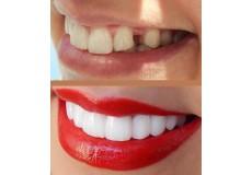 42%попуст за надокнадување на изгубени заби со изработување на естетски металокерамички мостови