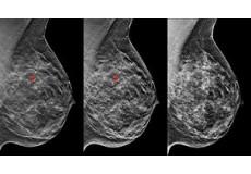 40% ПОПУСТ на  мамографија на дојка, ехо на дојка со ултразвук и консултација со специјалист. ПЗУ Поликлиника Мед-Х Дијагнпстика.