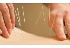 55% попуст на Миопунктура + ортопедска масажа + киропрактика