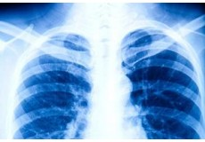 RTG на бели дробови и срце