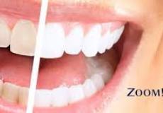 30% ПОПУСТ на белење на заби со zoom апарат