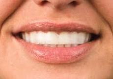 Опалесценце белеење на заби. Со купен ваучер од 300 денари, добивате попуст од 6100 денари, на 2200