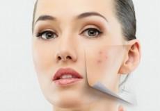 25% ПОПУСТ на пакет третмани за лекување на сите видови АКНИ, навременото третирање на акните го намалува ризикот од појава на лузни.