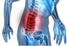 КРАЈ ЗА ДИСКУС ХЕРНИЈАТА 25% Попуст на 10 третмани за целосно лекување на Дискус Хернија. 1 третман содржи (медицинска масажа, електротерапија, електроакопунктура, вежби, киропрактика, термотерапија, солукс ламба )