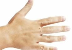 40% ПОПУСТ за Отстранување на Фиброми ( Мек и Тврд ) + Папиломи, од 1 до 3 промени.(Погледнете ги и пакетите од 3-8 промени и Повеќе од 8 промени).Приватна Здравствена Ординација за кожни и венерични болести ДЕРМАКОРЕКТ.