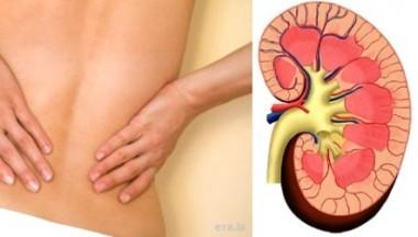 65% Комплетен нефролошки пакет за жени кој вклучува, Нефролошки преглед + Ехо на бубрези и надбубрежни жлезди + Ехо на мочно ќесе и мочоводи + Ехо и проценка на рест урина (резидуална урина)  + Дијагноза и советување.