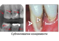 79% попуст на лекување на забно ткиво+ чистење на забен камен+отстранување на меки наслаги+отстранување на субгингивални конкременти